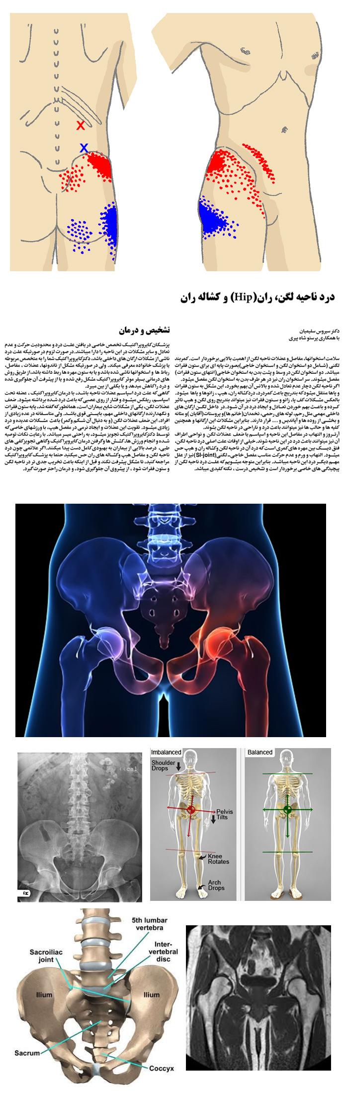 pelvic-hip